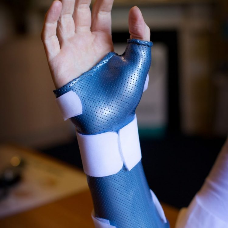 Central Victorian Hand Therapy - can fabricate custom orthoses, braces and casts to treat finger, wrist & elbow dislocations