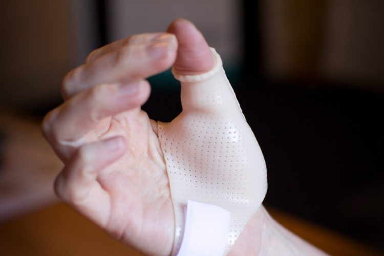 Central Victorian Hand Therapy - custom made orthosis is light and very comfortable